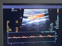 Vasculaire Ultrasone klank stock fotografie