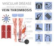 Vascular diseases. Vein thrombosis symptoms, treatment icon set. Vector Illustration