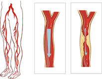 Vascular System Legs. Royalty Free Stock Images