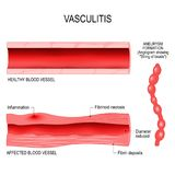 Vasculitis is damange of blood vessels by inflammation. Cross section of the affected, and healthy blood vessel. aneurysm formation stock illustration