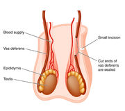 Vasectomy operation. Diagram of the scrotum and testes showing the portion of vas deferens removed in a vasectomy operation Stock Photography