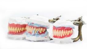 Vaxa tandprotesen, tand- modeller som visar olika typer Arkivbild