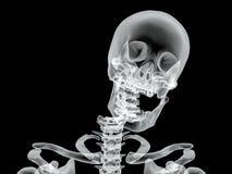 Vector broken bone x-ray image Stock Images