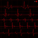 Vector cardiogram. Vector illustration of medical impulse of heart Stock Photo