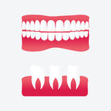 Vector cartoon false teeth. White false teeth, False teeth prosthetic isolated on white background, Dental technology vector. False teeth vector illustration Royalty Free Stock Photography
