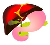 Vector cheme hepatitis B,HBV. Biliary system. Hepatic duct, liver, gallbladder, cystic duodenum, pancreatic, stomach, pancreas. Medical icon Stock Photos