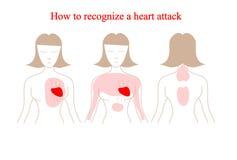Vector del ataque del corazón infographic Síntomas del ataque del corazón Cómo reconocer un ataque del corazón Foto de archivo