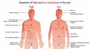 High and low testosterone symptoms. Vector diagram illustration indicating the medical symptoms and consequences of high and low levels of testosterone in men royalty free illustration