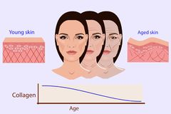Vector Gesicht und zwei Arten gealterte Haut - und Junge für die medizinischen und cosmetological Illustrationen lizenzfreie abbildung