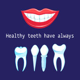 Vector healthy teeth and implants Stock Photos