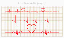 Vector Heart cardiogram charts set Royalty Free Stock Image