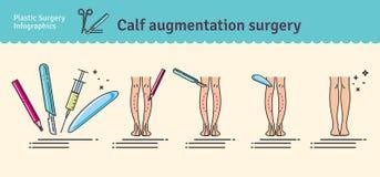 Vector Illustrated set with calf augmentation surgery Stock Photos