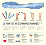 Vector Illustrated set with calf augmentation surgery Stock Photography