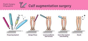 Vector Illustrated set with calf augmentation surgery Stock Images