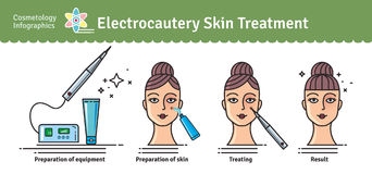Vector Illustrated set with cosmetology electrocautery skin trea Stock Image