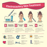 Vector Illustrated set with cosmetology electrocautery skin treatment Royalty Free Stock Images
