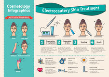 Vector Illustrated set with cosmetology electrocautery skin treatment Stock Image