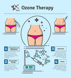 Vector Illustrated set with cosmetology ozone therapy Stock Photo
