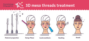 Vector Illustrated set with 3d Meso Thread face Lift therapy. Infographics with icons of medical cosmetic procedures for skin Royalty Free Stock Photos