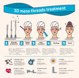 Vector Illustrated set with 3d Meso Thread face Lift therapy Royalty Free Stock Image