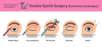 Vector Illustrated set with double eyelid surgery. Infographics with icons of plastic surgery procedures stock illustration