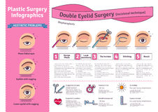 Vector Illustrated set with double eyelid surgery. Infographics with icons of plastic surgery procedures vector illustration