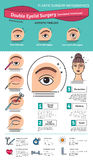 Vector Illustrated set with double eyelid surgery. Infographics with icons of plastic surgery procedures royalty free illustration