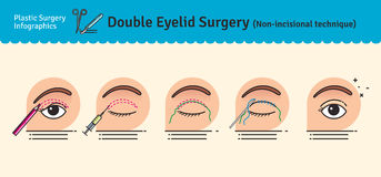 Vector Illustrated set with double eyelid surgery. Non-incisional technique. Infographics with icons of plastic surgery procedures stock illustration
