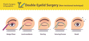 Vector Illustrated set with double eyelid surgery. Non-incisional technique. Infographics with icons of plastic surgery procedures vector illustration