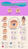 Vector Illustrated set with double eyelid surgery. Non-incisional technique. Infographics with icons of plastic surgery procedures royalty free illustration
