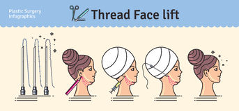 Vector Illustrated set with face lifting surgery by threads Royalty Free Stock Photography