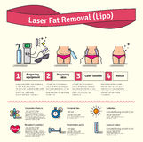 Vector Illustrated set with Laser LIPO Fat Removal Royalty Free Stock Photos