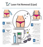 Vector Illustrated set with Laser LIPO Fat Removal Royalty Free Stock Photography
