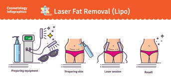 Vector Illustrated set with Laser LIPO Fat Removal Royalty Free Stock Image