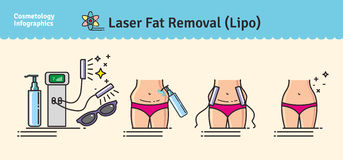Vector Illustrated set with Laser LIPO Fat Removal Royalty Free Stock Images