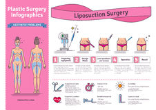 Vector Illustrated set with liposuction surgery Stock Images