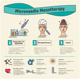 Vector Illustrated set with salon Micro needle mesotherapy Stock Images