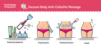 Vector Illustrated set with salon vacuum body anti-cellulite mas Royalty Free Stock Photo