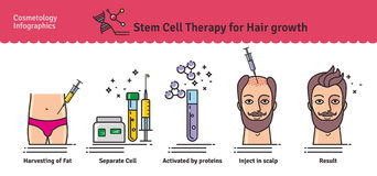 Vector Illustrated set with stem cell therapy for hair growth Royalty Free Stock Photos