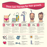 Vector Illustrated set with stem cell therapy for hair growth. Vector Illustrated set with cosmetology stem cell therapy for hair growth. Infographics with icons Royalty Free Stock Photography