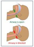 Vector illustration of apnea symptoms. Stock Photos