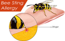 Vector illustration of a Bee sting allergy Stock Images