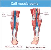Vector Ä°llustration of a Calf muscle pump. Vector İllustration of a Calf muscle pump vector illustration