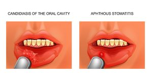 Candidiasis and aphthous stomatitis Stock Photography