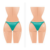 Vector illustration of cellulite and healthy skin Stock Images
