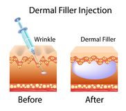 Vector illustration with cosmetic filler or Dermal fillers. On white background Royalty Free Stock Images