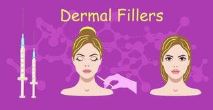 Vector illustration with dermal filler process on the purple background. Vector illustration with dermal filler process on the dark purple background Royalty Free Stock Photos