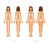 Vector illustration of different  body types, set Stock Photos