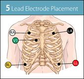 Vector Illustration einer Elektrodenplatzierung mit 5 Führungen lizenzfreie abbildung