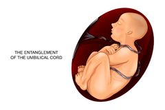 The entanglement of the umbilical cord around the fetus. Vector illustration of entanglement of umbilical cord around the fetus Royalty Free Stock Photos